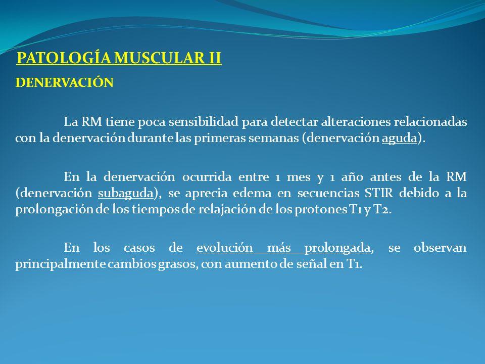 DENERVACIÓN La RM tiene poca sensibilidad para detectar alteraciones relacionadas con la denervación durante las primeras semanas (denervación aguda).