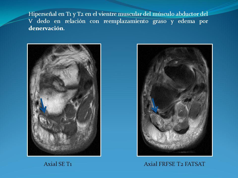 Axial SE T1Axial FRFSE T2 FATSAT Hiperseñal en T1 y T2 en el vientre muscular del músculo abductor del V dedo en relación con reemplazamiento graso y