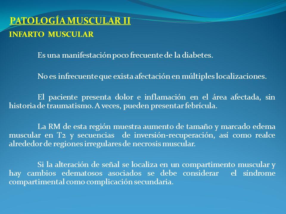 INFARTO MUSCULAR Es una manifestación poco frecuente de la diabetes. No es infrecuente que exista afectación en múltiples localizaciones. El paciente