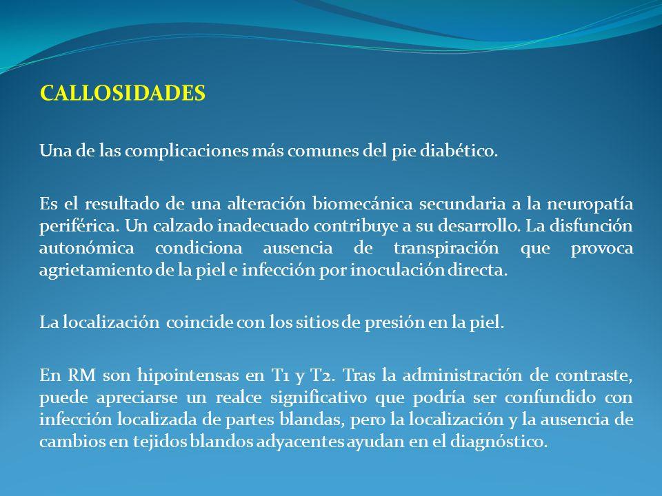 CALLOSIDADES Una de las complicaciones más comunes del pie diabético. Es el resultado de una alteración biomecánica secundaria a la neuropatía perifér