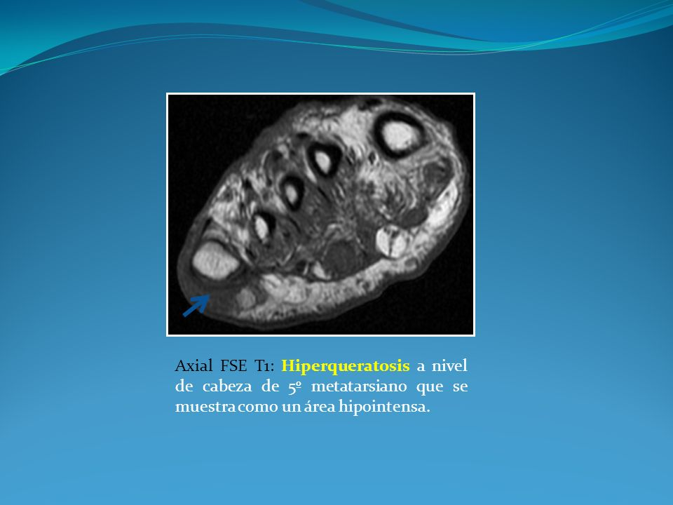 Axial FSE T1: Hiperqueratosis a nivel de cabeza de 5º metatarsiano que se muestra como un área hipointensa.