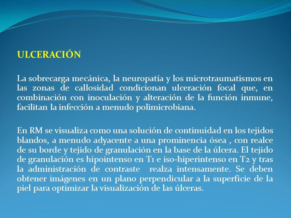 ULCERACIÓN La sobrecarga mecánica, la neuropatía y los microtraumatismos en las zonas de callosidad condicionan ulceración focal que, en combinación c
