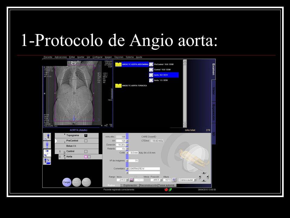 1-Protocolo de Angio aorta: