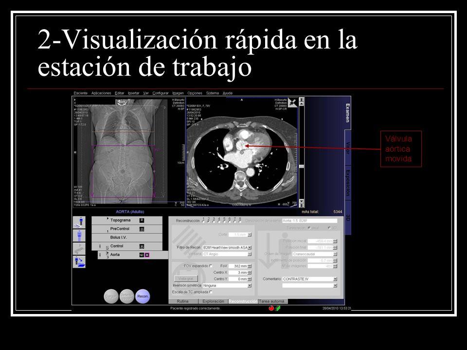 2-Visualización rápida en la estación de trabajo Válvula aórtica movida