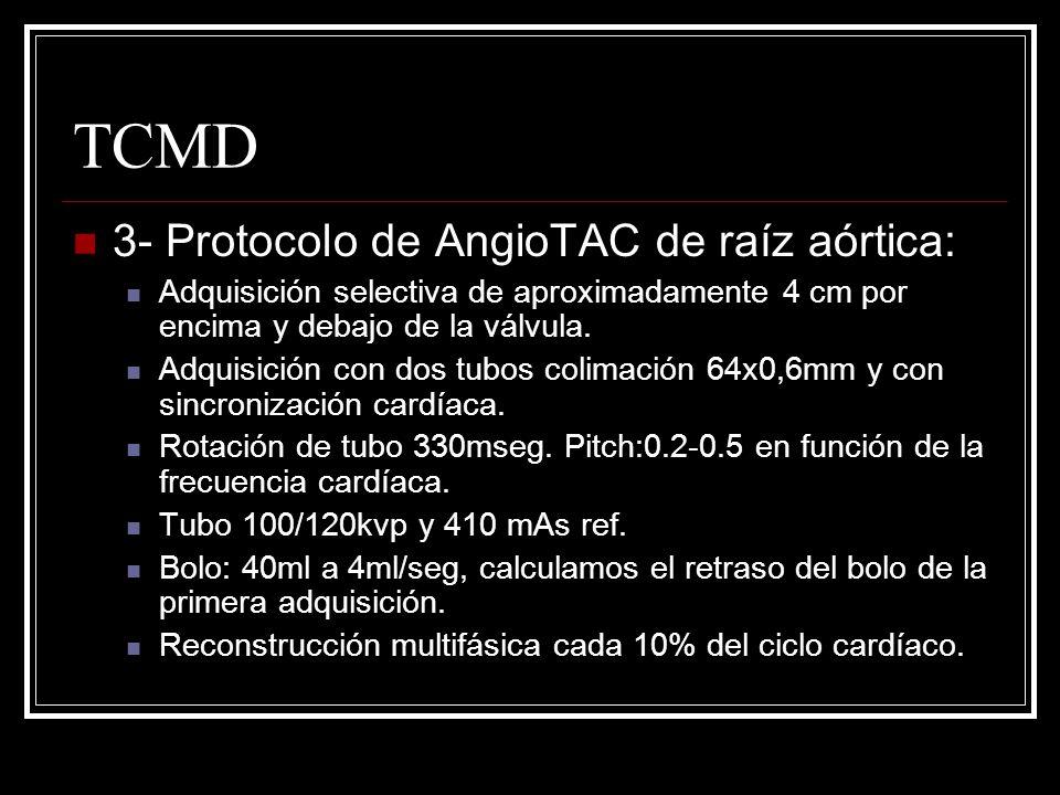 TCMD 3- Protocolo de AngioTAC de raíz aórtica: Adquisición selectiva de aproximadamente 4 cm por encima y debajo de la válvula. Adquisición con dos tu