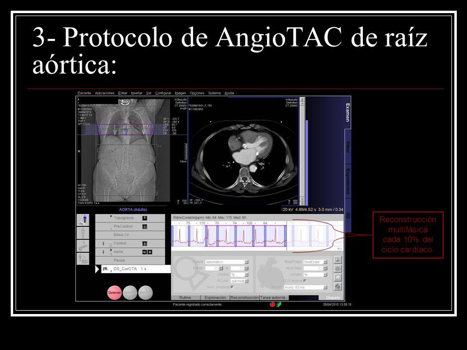 3- Protocolo de AngioTAC de raíz aórtica: Reconstrucción multifásica cada 10% del ciclo cardíaco.