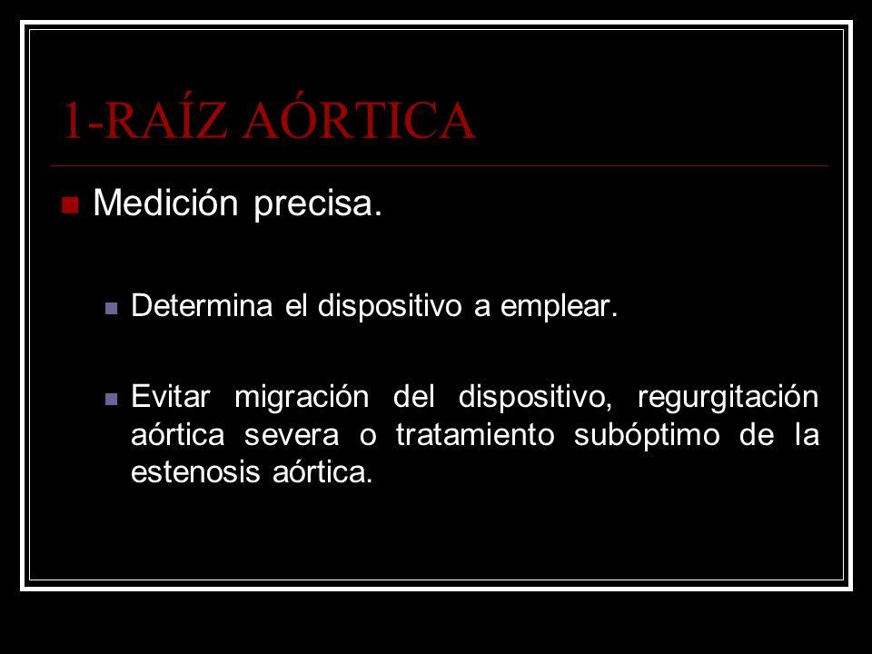 1-RAÍZ AÓRTICA Medición precisa. Determina el dispositivo a emplear. Evitar migración del dispositivo, regurgitación aórtica severa o tratamiento subó