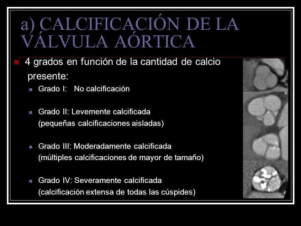 a) CALCIFICACIÓN DE LA VÁLVULA AÓRTICA 4 grados en función de la cantidad de calcio presente: Grado I:No calcificación Grado II: Levemente calcificada