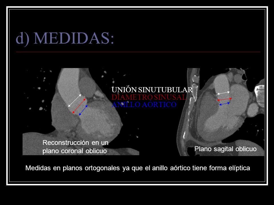 Medidas en planos ortogonales ya que el anillo aórtico tiene forma elíptica Reconstrucción en un plano coronal oblicuo Plano sagital oblicuo d) MEDIDA