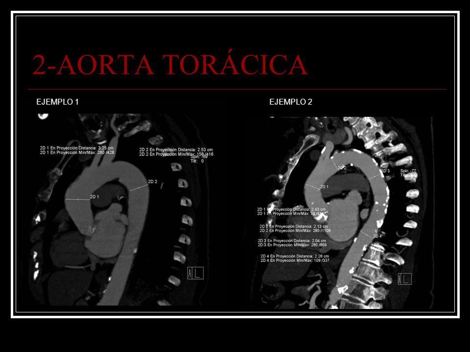 2-AORTA TORÁCICA EJEMPLO 1EJEMPLO 2