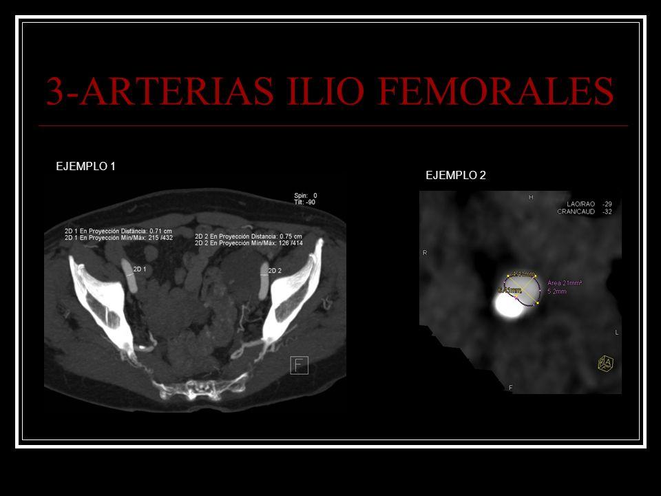 3-ARTERIAS ILIO FEMORALES EJEMPLO 1 EJEMPLO 2