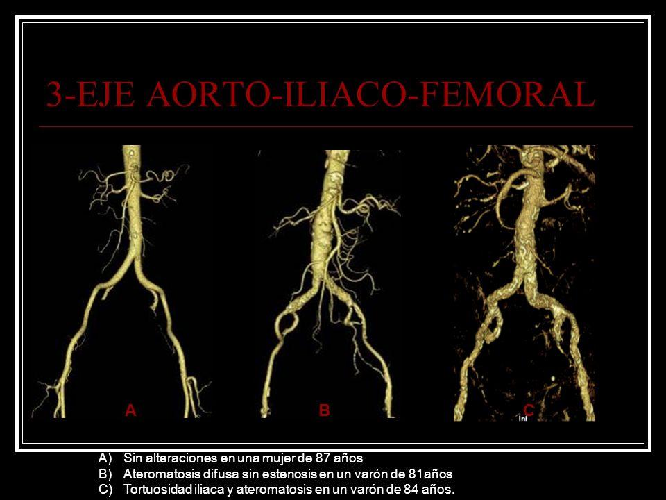 3-EJE AORTO-ILIACO-FEMORAL A)Sin alteraciones en una mujer de 87 años B)Ateromatosis difusa sin estenosis en un varón de 81años C)Tortuosidad iliaca y