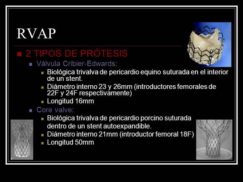 RVAP 2 TIPOS DE PRÓTESIS Válvula Cribier-Edwards: Biológica trivalva de pericardio equino suturada en el interior de un stent. Diámetro interno 23 y 2