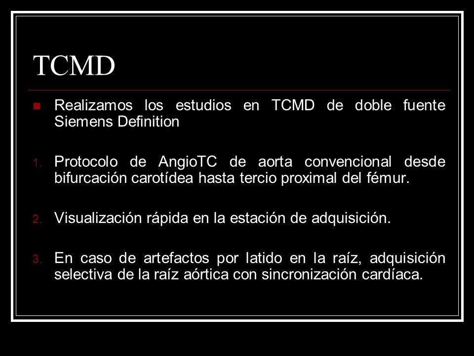 TCMD Realizamos los estudios en TCMD de doble fuente Siemens Definition 1. Protocolo de AngioTC de aorta convencional desde bifurcación carotídea hast