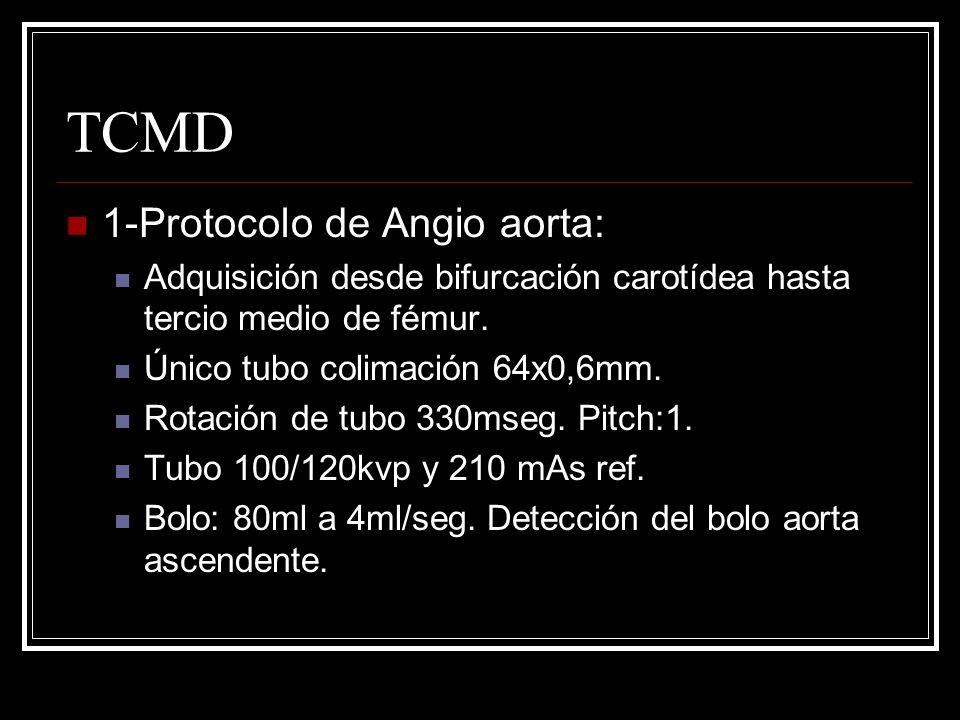 TCMD 1-Protocolo de Angio aorta: Adquisición desde bifurcación carotídea hasta tercio medio de fémur. Único tubo colimación 64x0,6mm. Rotación de tubo