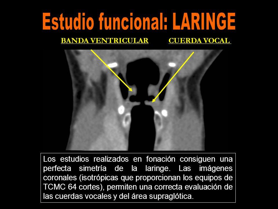 Los estudios realizados en fonación consiguen una perfecta simetría de la laringe. Las imágenes coronales (isotrópicas que proporcionan los equipos de