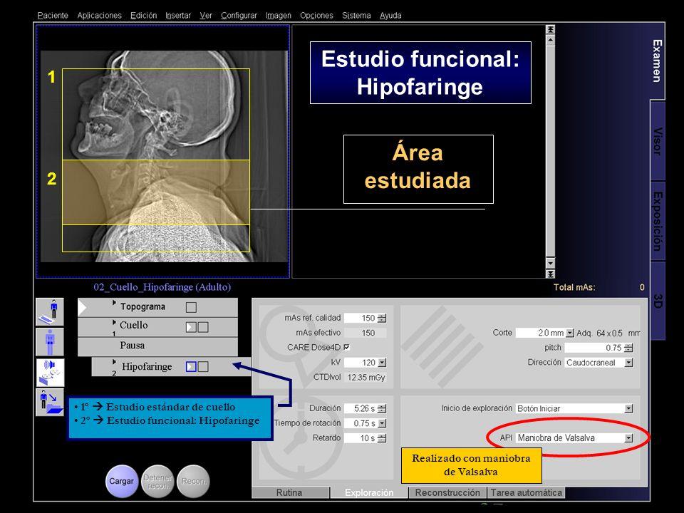 2 1 Área estudiada Realizado con maniobra de Valsalva Estudio funcional: Hipofaringe 1º Estudio estándar de cuello 2º Estudio funcional: Hipofaringe