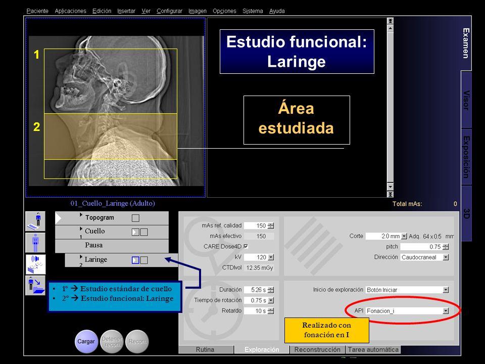 2 1 Área estudiada Realizado con fonación en I Estudio funcional: Laringe 1º Estudio estándar de cuello 2º Estudio funcional: Laringe