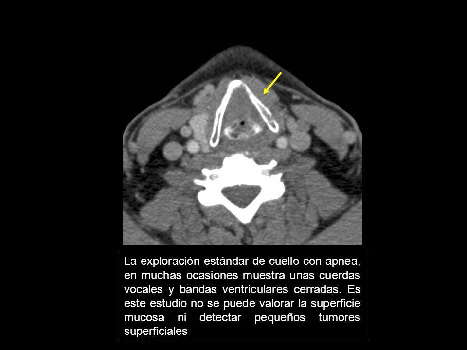 La exploración estándar de cuello con apnea, en muchas ocasiones muestra unas cuerdas vocales y bandas ventriculares cerradas. Es este estudio no se p
