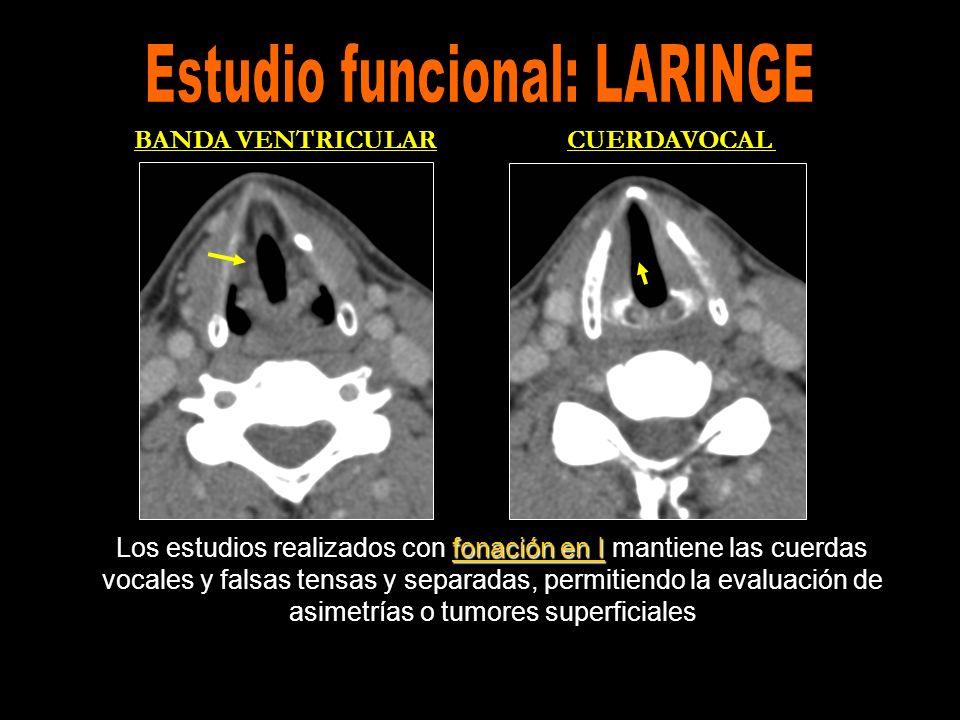 Los estudios realizados en fonación consiguen una perfecta simetría de la laringe.