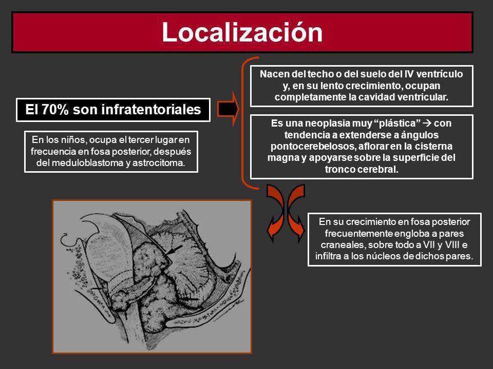Localización El 70% son infratentoriales Nacen del techo o del suelo del IV ventrículo y, en su lento crecimiento, ocupan completamente la cavidad ven