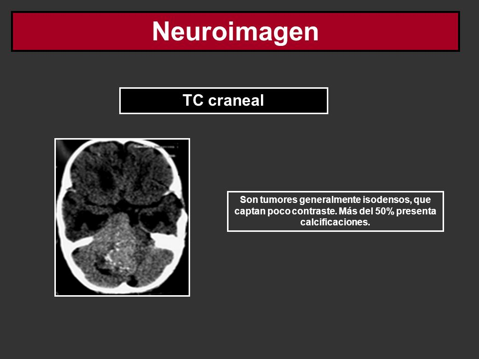 Neuroimagen TC craneal Son tumores generalmente isodensos, que captan poco contraste. Más del 50% presenta calcificaciones.