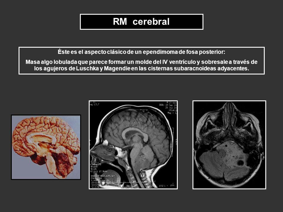 RM cerebral Éste es el aspecto clásico de un ependimoma de fosa posterior: Masa algo lobulada que parece formar un molde del IV ventrículo y sobresale