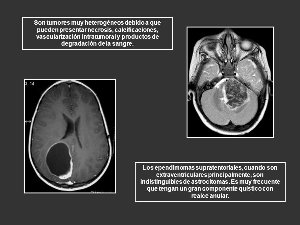 Son tumores muy heterogéneos debido a que pueden presentar necrosis, calcificaciones, vascularización intratumoral y productos de degradación de la sa