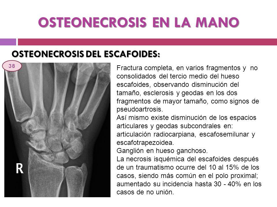 OSTEONECROSIS EN LA MANO OSTEONECROSIS DEL ESCAFOIDES: Fractura completa, en varios fragmentos y no consolidados del tercio medio del hueso escafoides
