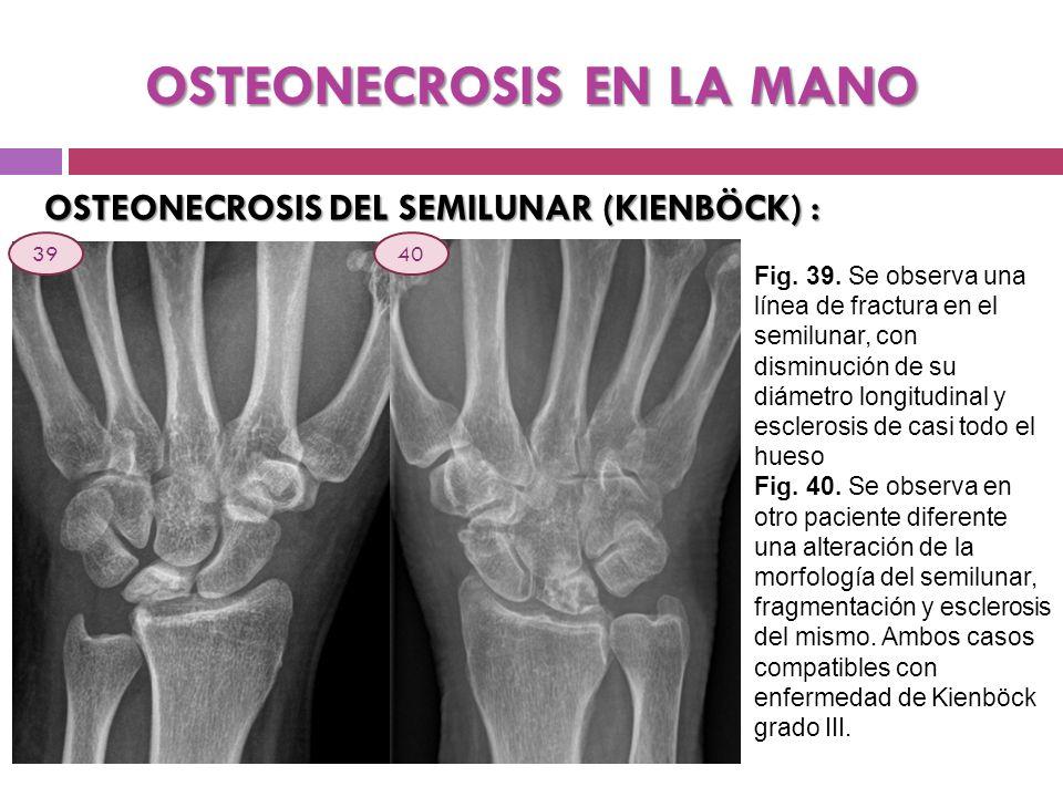 OSTEONECROSIS EN LA MANO OSTEONECROSIS DEL SEMILUNAR (KIENBÖCK) : Fig. 39. Se observa una línea de fractura en el semilunar, con disminución de su diá