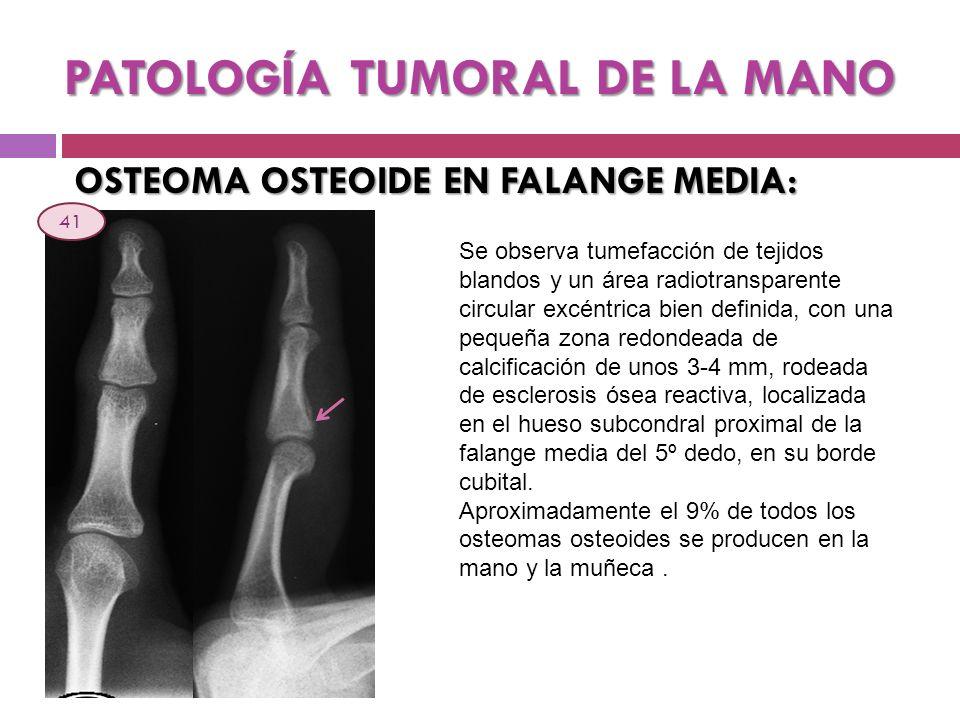 PATOLOGÍA TUMORAL DE LA MANO OSTEOMA OSTEOIDE EN FALANGE MEDIA: Se observa tumefacción de tejidos blandos y un área radiotransparente circular excéntr