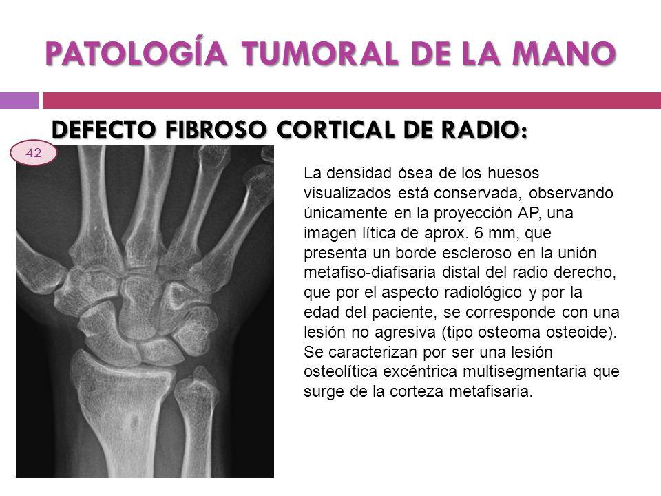 PATOLOGÍA TUMORAL DE LA MANO DEFECTO FIBROSO CORTICAL DE RADIO: La densidad ósea de los huesos visualizados está conservada, observando únicamente en