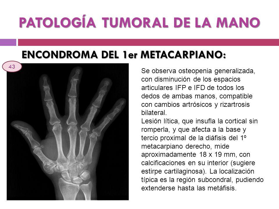 PATOLOGÍA TUMORAL DE LA MANO ENCONDROMA DEL 1er METACARPIANO: Se observa osteopenia generalizada, con disminución de los espacios articulares IFP e IF