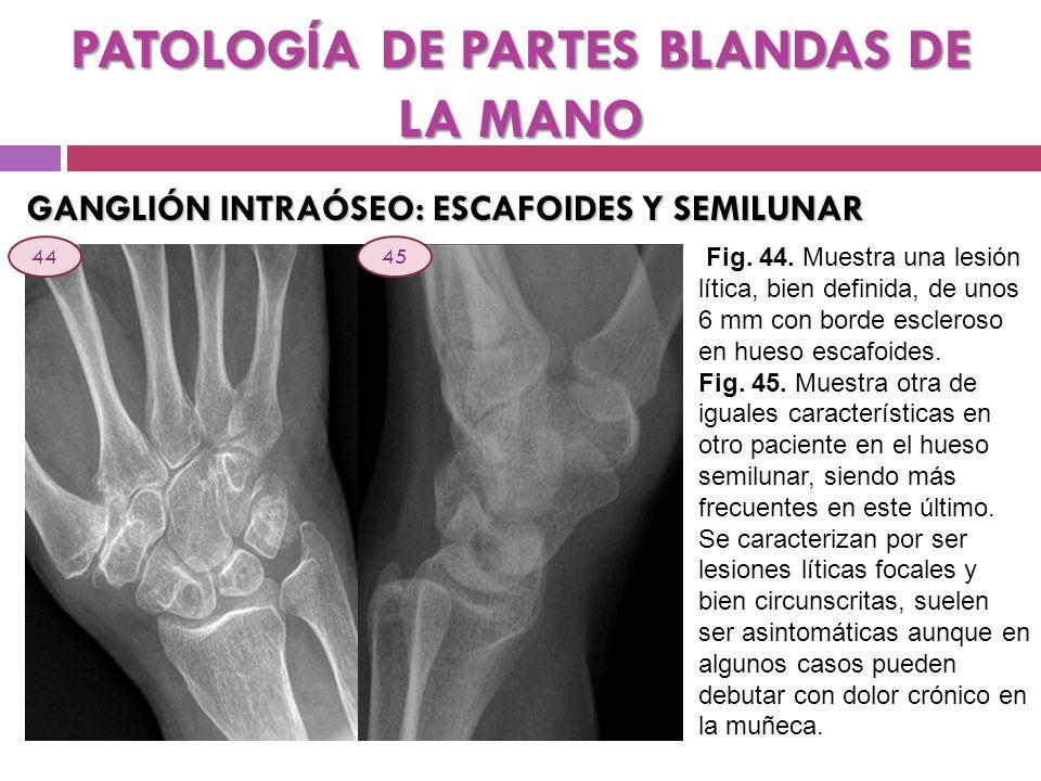 PATOLOGÍA DE PARTES BLANDAS DE LA MANO GANGLIÓN INTRAÓSEO: ESCAFOIDES Y SEMILUNAR Fig. 44. Muestra una lesión lítica, bien definida, de unos 6 mm con