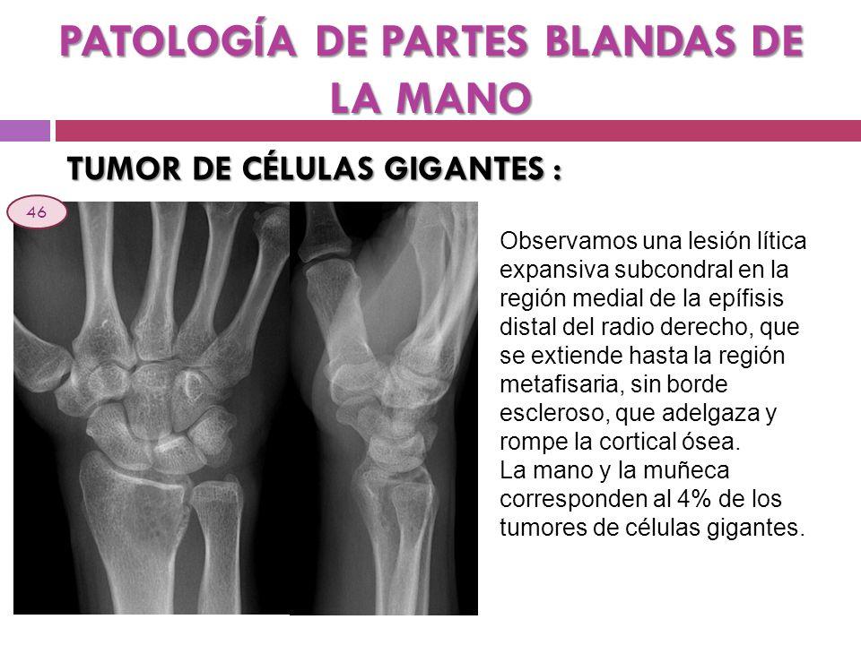 PATOLOGÍA DE PARTES BLANDAS DE LA MANO TUMOR DE CÉLULAS GIGANTES : Observamos una lesión lítica expansiva subcondral en la región medial de la epífisi