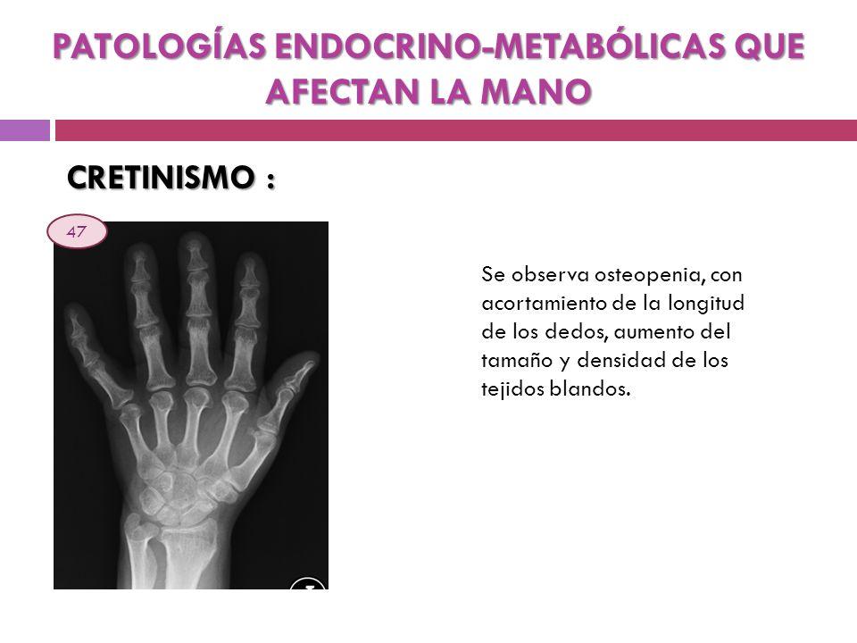 CRETINISMO : Se observa osteopenia, con acortamiento de la longitud de los dedos, aumento del tamaño y densidad de los tejidos blandos. PATOLOGÍAS END