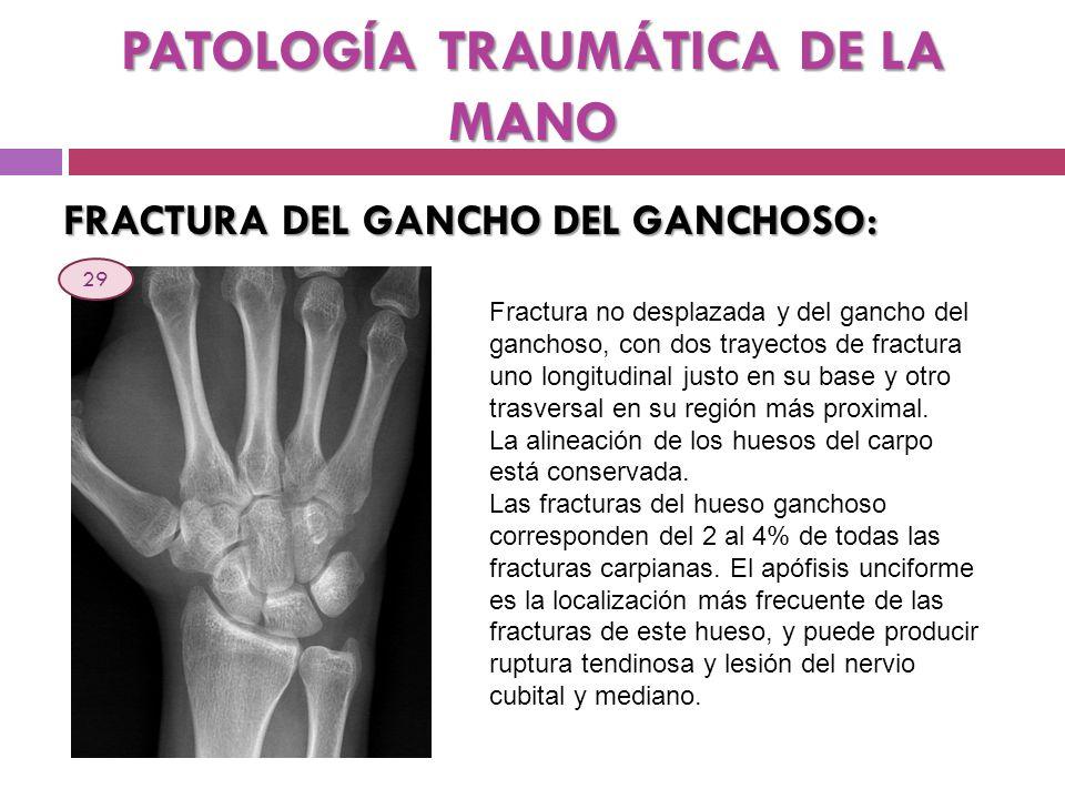 PATOLOGÍA TRAUMÁTICA DE LA MANO FRACTURA DEL GANCHO DEL GANCHOSO: Fractura no desplazada y del gancho del ganchoso, con dos trayectos de fractura uno