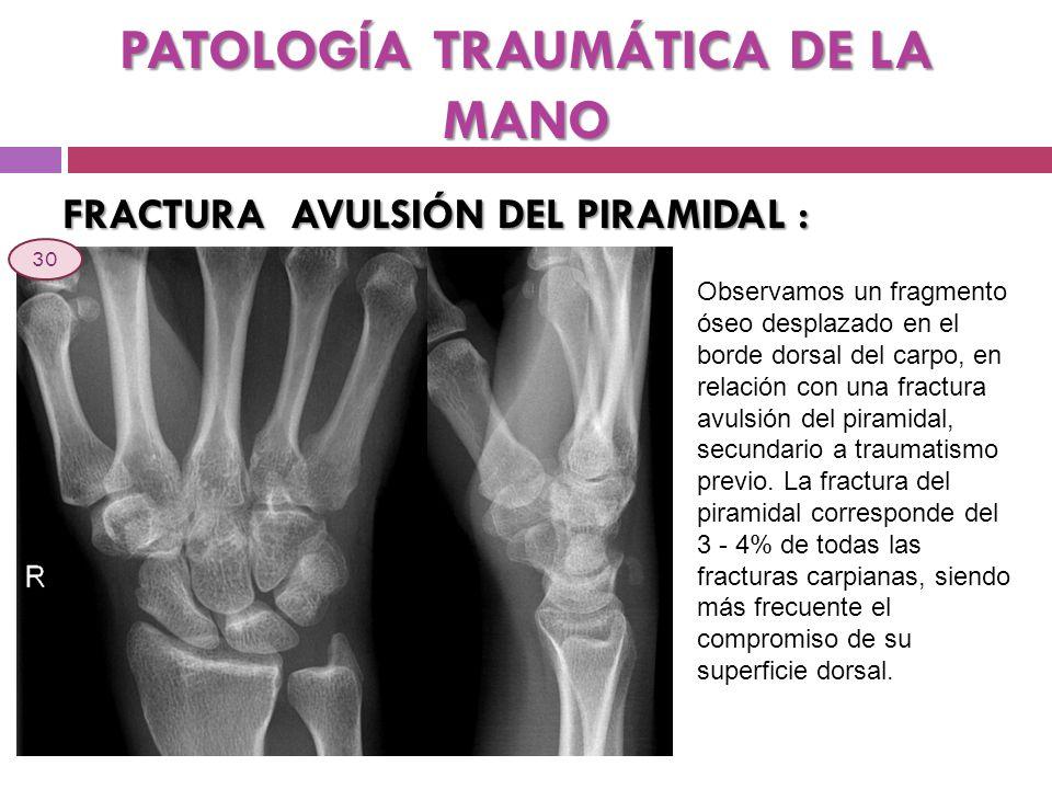 PATOLOGÍA TRAUMÁTICA DE LA MANO FRACTURA AVULSIÓN DEL PIRAMIDAL : Observamos un fragmento óseo desplazado en el borde dorsal del carpo, en relación co