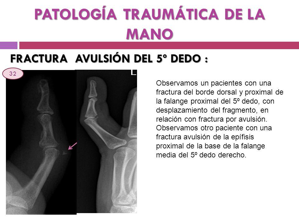 PATOLOGÍA TRAUMÁTICA DE LA MANO FRACTURA AVULSIÓN DEL 5º DEDO : Observamos un pacientes con una fractura del borde dorsal y proximal de la falange pro