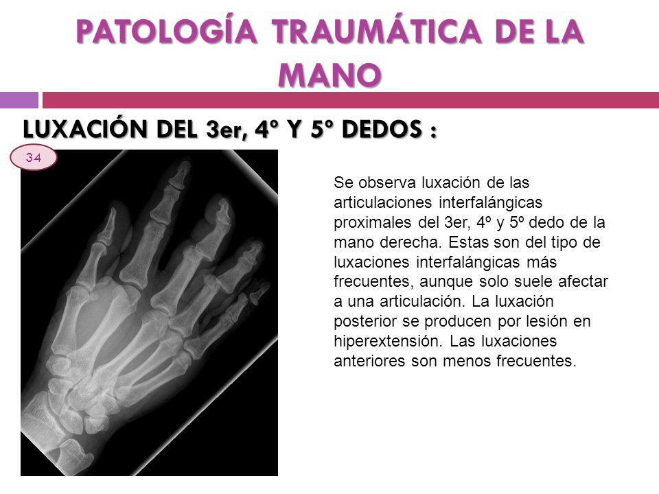PATOLOGÍA TRAUMÁTICA DE LA MANO LUXACIÓN DEL 3er, 4º Y 5º DEDOS : Se observa luxación de las articulaciones interfalángicas proximales del 3er, 4º y 5