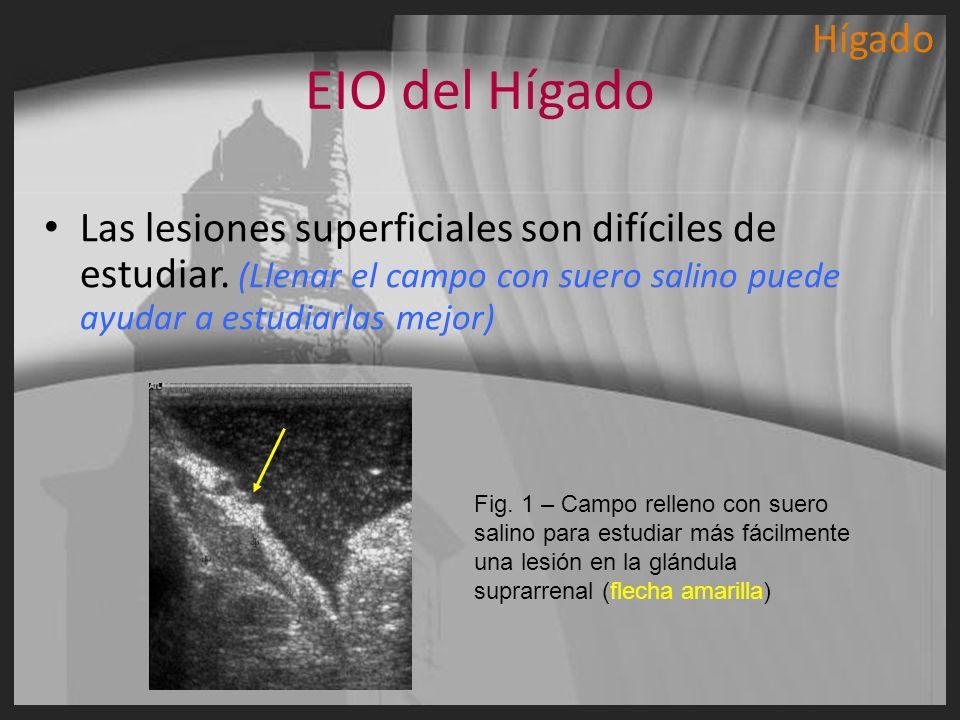 EIO del Hígado Las lesiones superficiales son difíciles de estudiar. (Llenar el campo con suero salino puede ayudar a estudiarlas mejor) Fig. 1 – Camp
