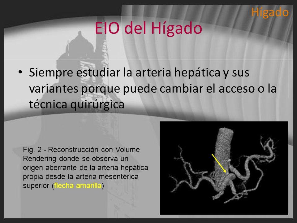 EIO del Hígado Siempre estudiar la arteria hepática y sus variantes porque puede cambiar el acceso o la técnica quirúrgica Fig. 2 - Reconstrucción con
