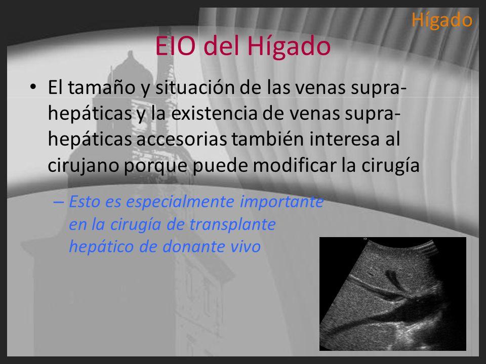 EIO del Hígado El tamaño y situación de las venas supra- hepáticas y la existencia de venas supra- hepáticas accesorias también interesa al cirujano p