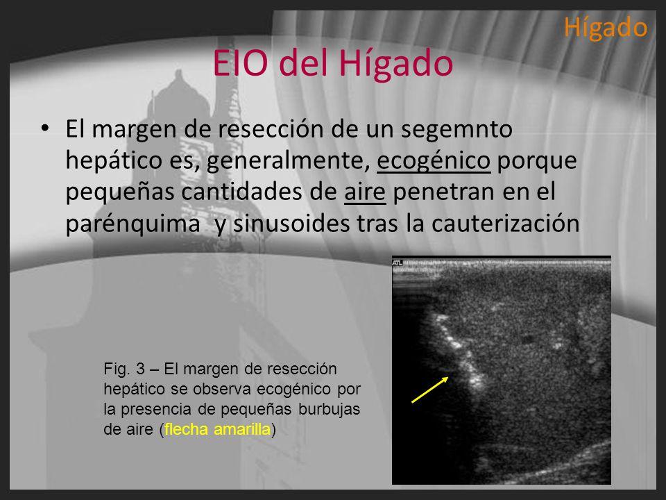 EIO del Hígado El margen de resección de un segemnto hepático es, generalmente, ecogénico porque pequeñas cantidades de aire penetran en el parénquima