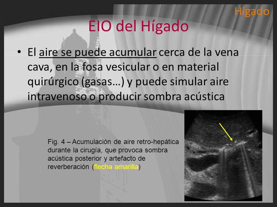 EIO del Hígado El aire se puede acumular cerca de la vena cava, en la fosa vesicular o en material quirúrgico (gasas…) y puede simular aire intravenos