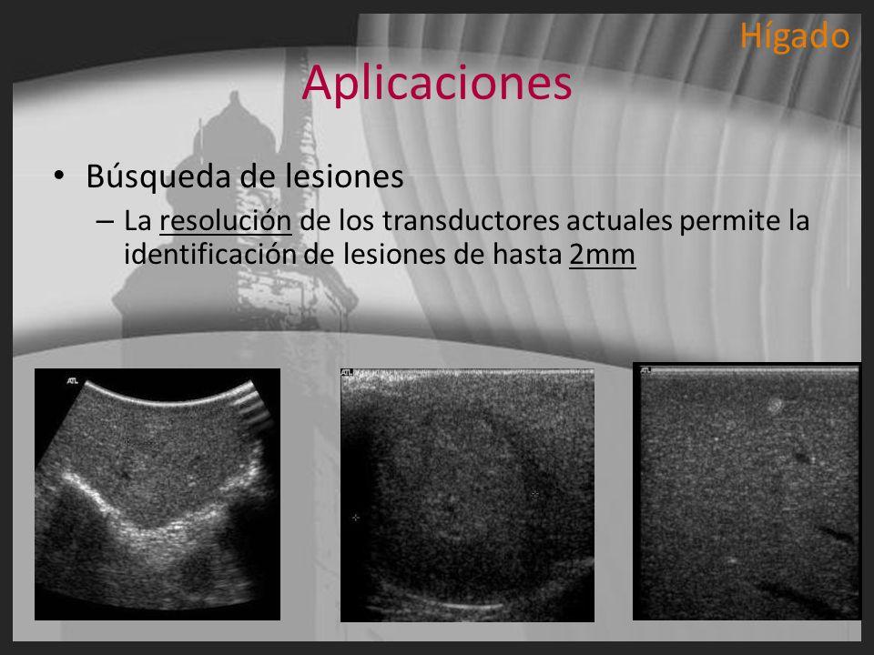 Aplicaciones Búsqueda de lesiones – La resolución de los transductores actuales permite la identificación de lesiones de hasta 2mm Hígado