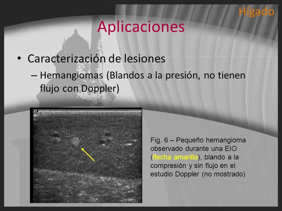 Aplicaciones Caracterización de lesiones – Hemangiomas (Blandos a la presión, no tienen flujo con Doppler) Fig. 6 – Pequeño hemangioma observado duran