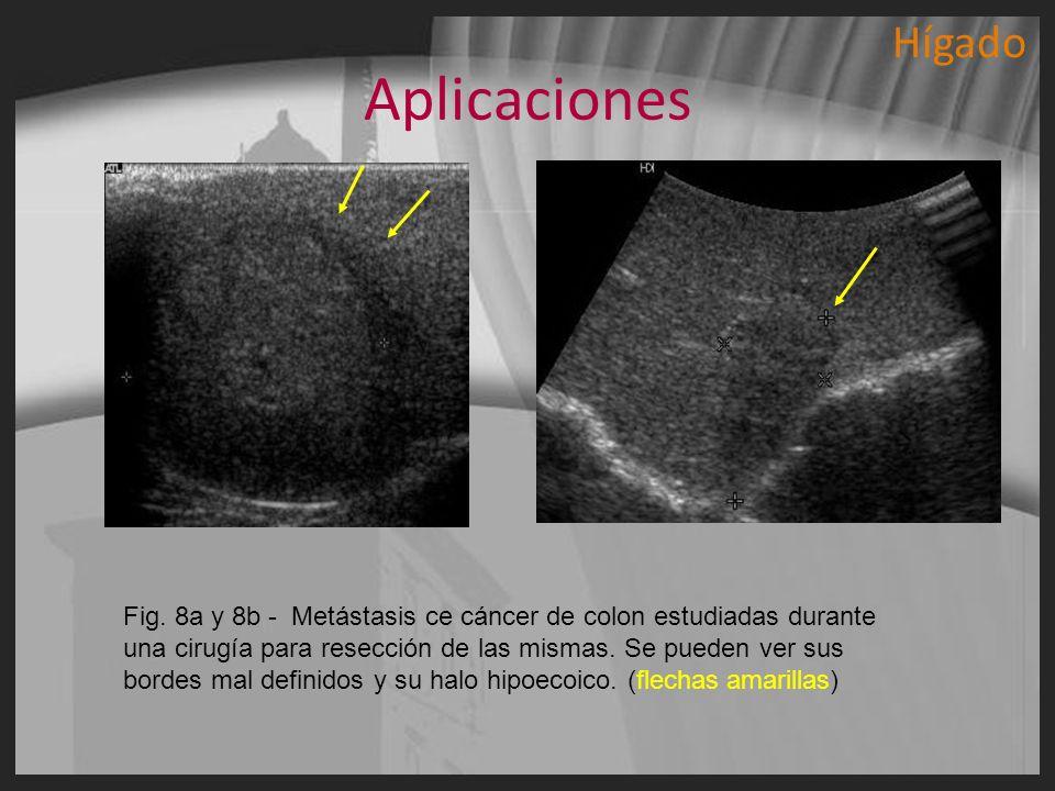 Aplicaciones Fig. 8a y 8b - Metástasis ce cáncer de colon estudiadas durante una cirugía para resección de las mismas. Se pueden ver sus bordes mal de