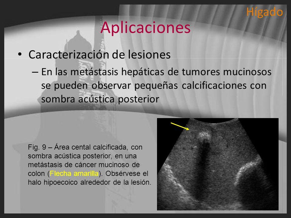 Aplicaciones Caracterización de lesiones – En las metástasis hepáticas de tumores mucinosos se pueden observar pequeñas calcificaciones con sombra acú