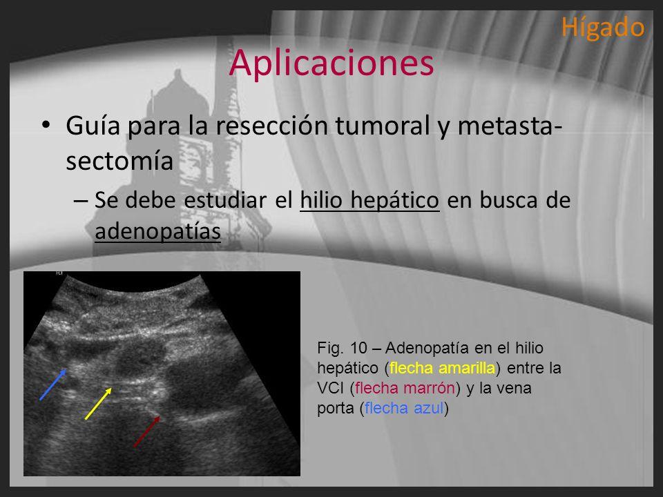 Aplicaciones Guía para la resección tumoral y metasta- sectomía – Se debe estudiar el hilio hepático en busca de adenopatías Fig. 10 – Adenopatía en e